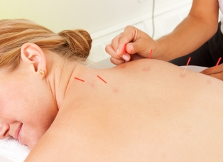 FitnWell Medical Acupunture in Staffordshire