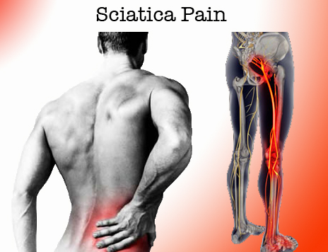 Are you suffering with sciatica?