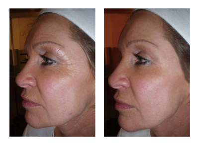 CACI Ultimate Anti-Aging Facial