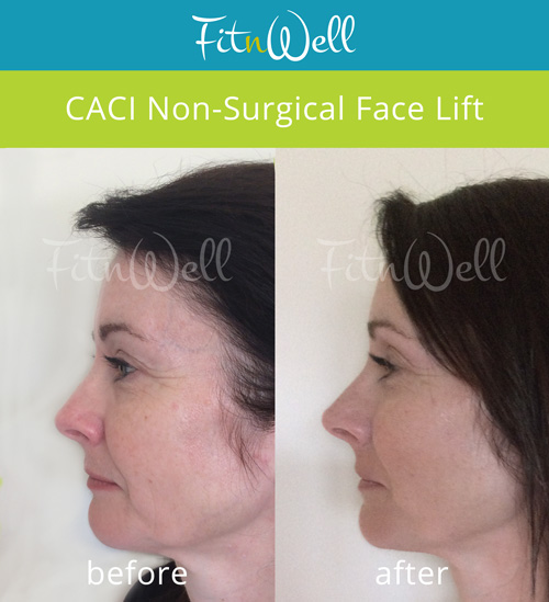 CACI Facelift - before and after