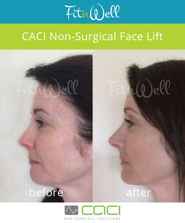 Fit n Well Caci Face Lift - before and after